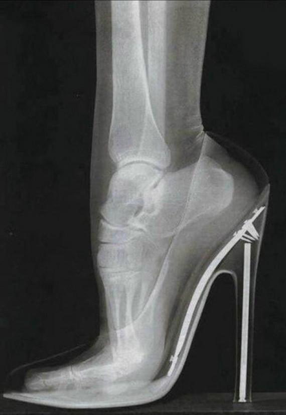 radiografia-pie-en-zapto-de-tacon-1